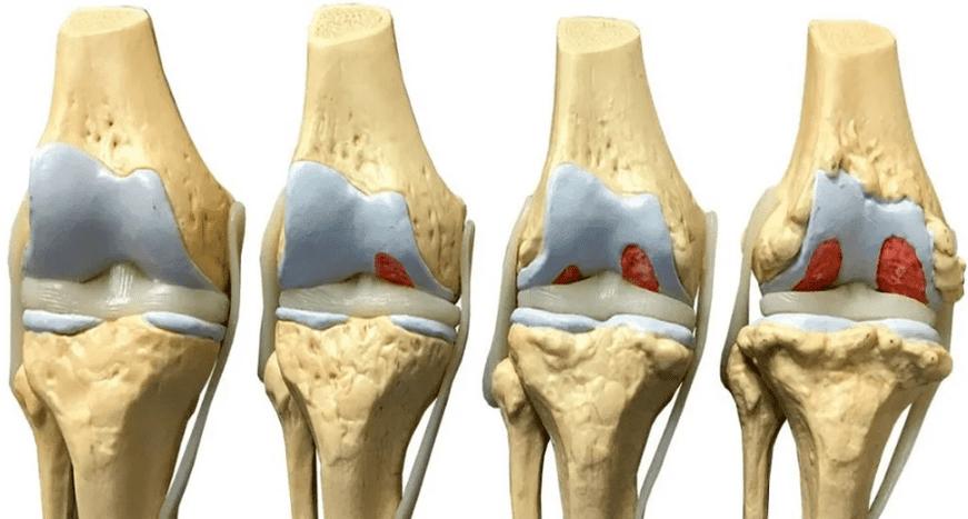 Ízületi kopás és kezelése - Budai FájdalomKözpont, Artrózis súlyosbító kezelés